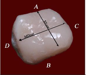 Коронка 16 зуба восстановленная пломбировочным материалом