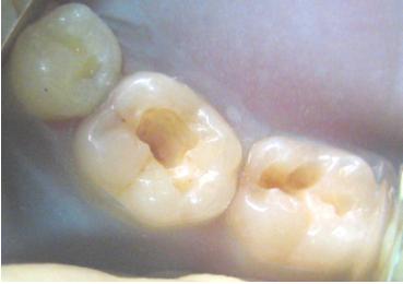 Препарированные полости 35, 36 и 37 зубов