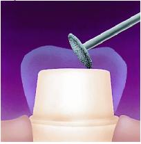 Разобщение на толщину искусственной коронки