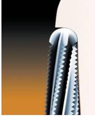 Одномоментное формирование окончательного уступа на культе зуба