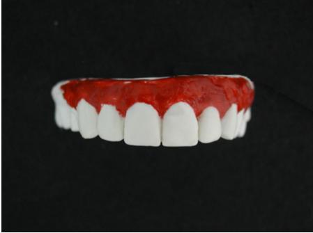 Пример диагностического воскового моделирования (wax-up)